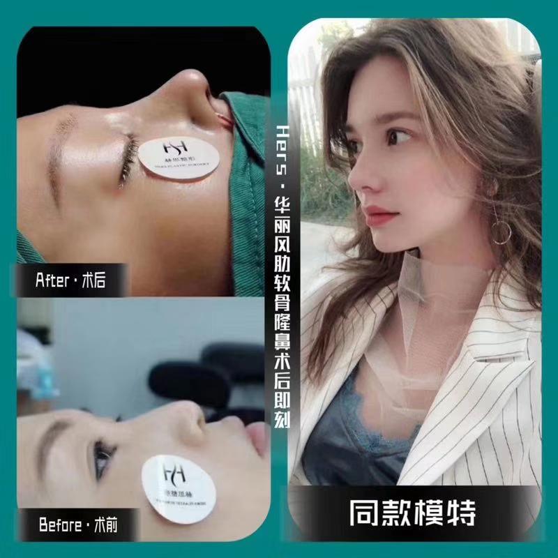 广州综合鼻整形