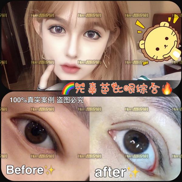广州割双眼皮价格