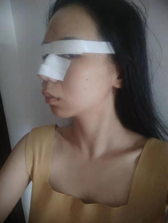 做肋软骨隆鼻术后让我360度无死角