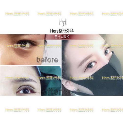 双眼皮手术要价格_做双眼皮价钱多少