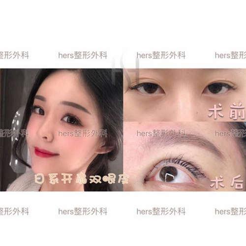 做双眼皮手术花价格_广州做双眼皮价格